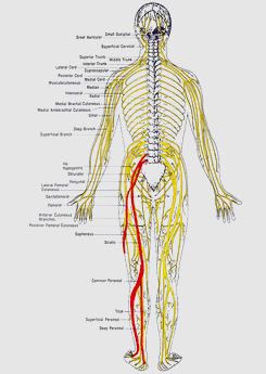 Body Of a Person With Sciatica